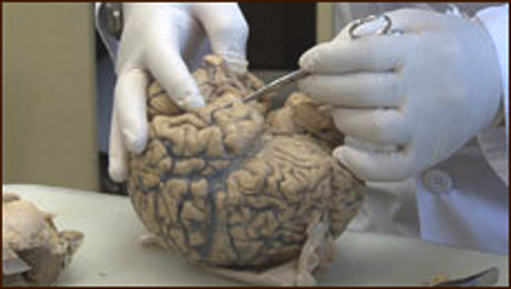 130518.brain.jpg